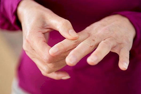 ترک سیگار موجب کاهش ریسک ابتلا به آرتروز می گردد
