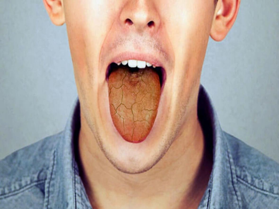 خشکی دهان را چگونه درمان کنیم؟